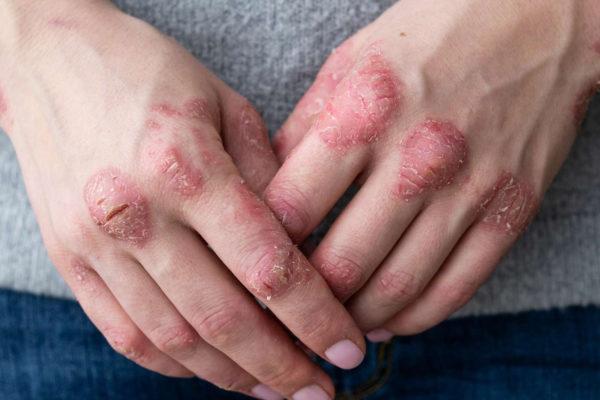 Le CBD contre le psoriasis